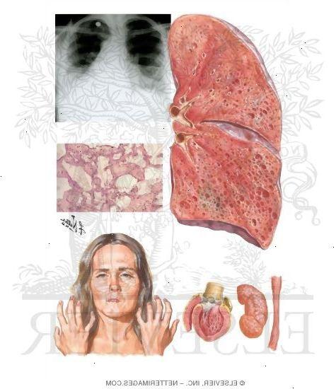 nodule au poumon est ce grave