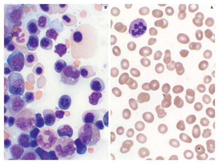 manque de leucocytes que faire
