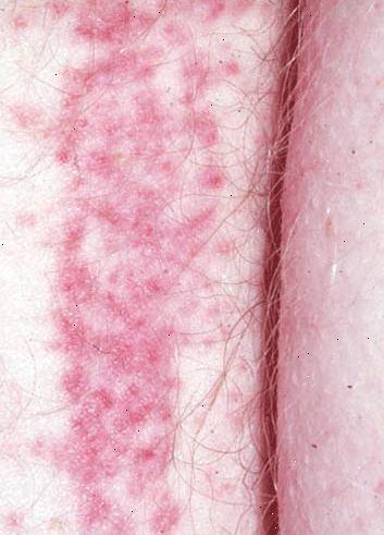 haemophilus parainfluenzae traitement