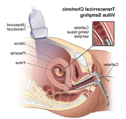 amniocentèse risques infection