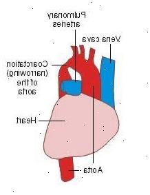 Coarctation de l'aorte - Plusou