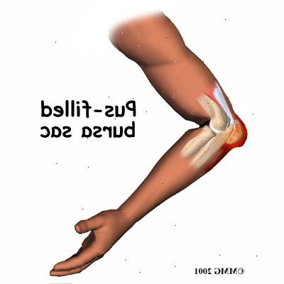arthrite coude