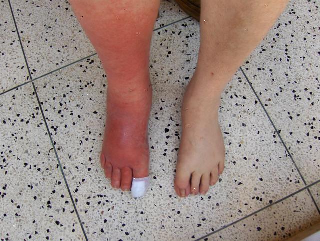cellulite du pied